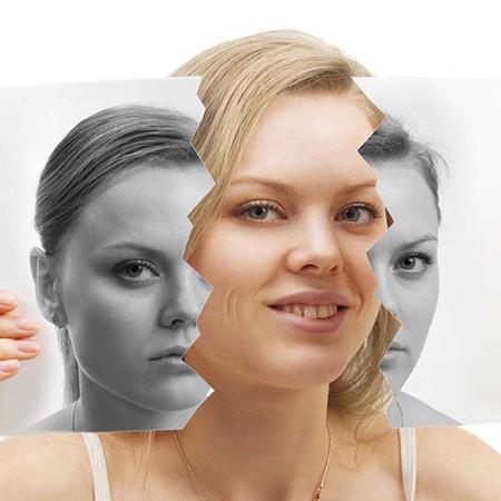 Nöron Psikiyatri-Bipolar Bozukluk