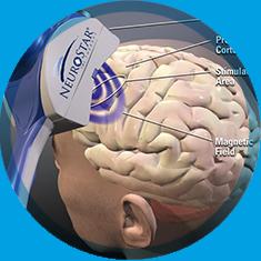 Nöron Psikiyatri-TMS